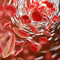 sickle cell anemia predominant among african americans